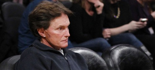 In this Jan. 2012 photo, former Olympic athlete Bruce Jenner, with stitches and a scar on his face, attends an NBA basketball game between the Dallas Mavericks and Los Angeles Lakers in Los Angeles. (AP Photo/Danny Moloshok)