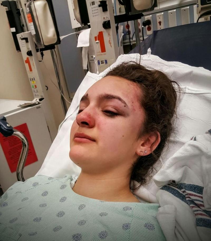 DePaul freshman Jessica Hughes was attacked on the CTA Blue Lines Thursday returning home from class. (Photo courtesy of JESSICA HUGHES)