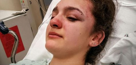 DePaul student attacked on Blue Line returning home from class
