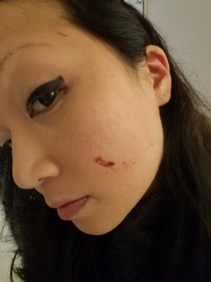 Photos from Kim's Twitter page show injuries to her face and legs from the incident.